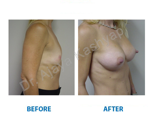 Breast implant surgery cost in delhi