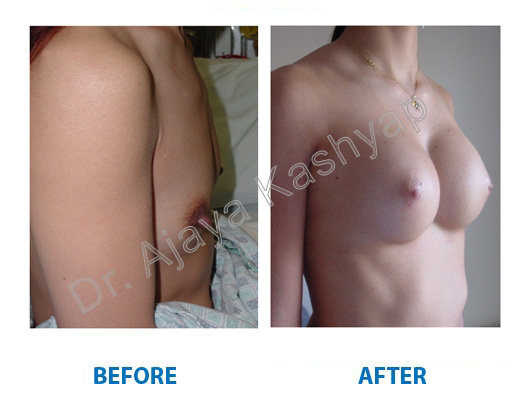 Breast Augmentation clinic