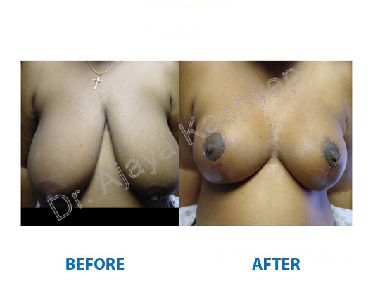breast reduction clinic