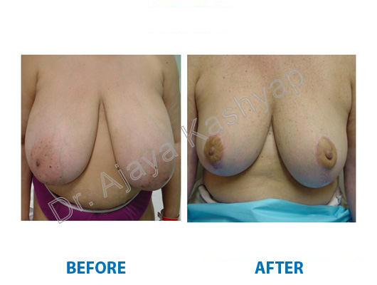 top breast reduction surgeon