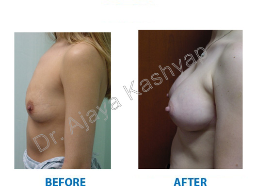 Breast enlargment surgery