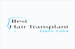 best hair transplant surgery delhi india
