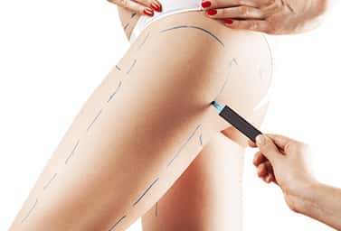 thigh lift surgery in india